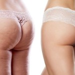comparison of two women buttocks with and without cellulite